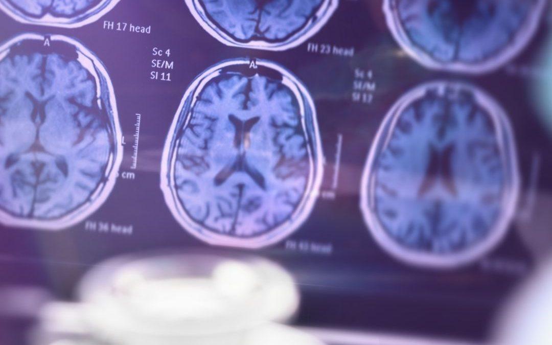 Lise Öğrencilerimiz Microsoft Türkiye ile Alzheimer Üzerine Çalışıyor